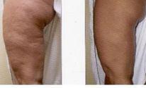 La Mesothérapie anti-Cellulite