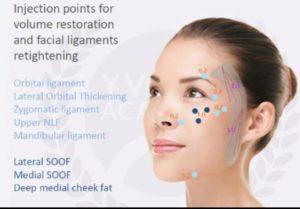 Injection points pour restaurer le volume du visage